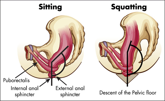 Anal Rectal Angle - Sitting Vs Squatting